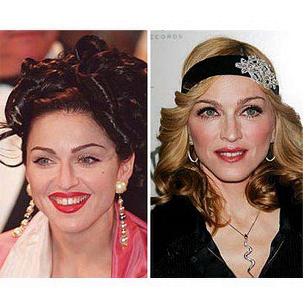 Ботокс фото до и после