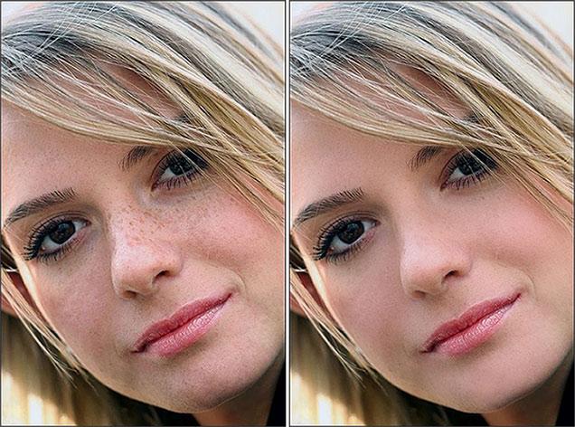 Пигментации и купероза на лице
